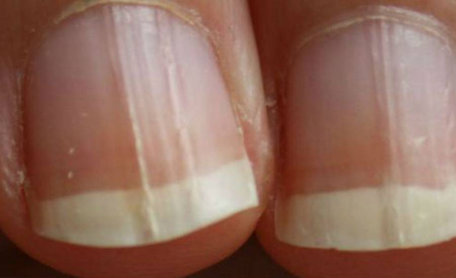 TounsiaNet : Remèdes maison contre les champignons des ongles