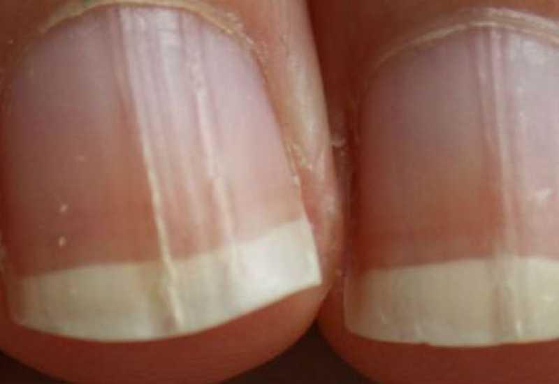 tounsia.Net : Remèdes maison contre les champignons des ongles