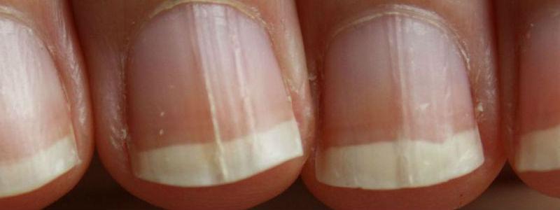 Santé : Remèdes maison contre les champignons des ongles
